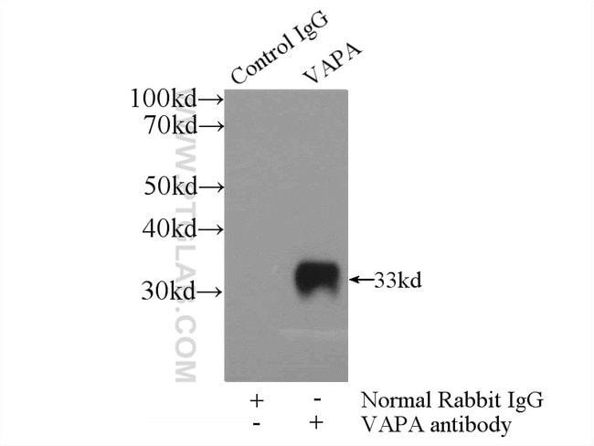 VAPA Rabbit anti-Human, Mouse, Rat, Polyclonal, Proteintech 150 μL; Unconjugated voir les résultats