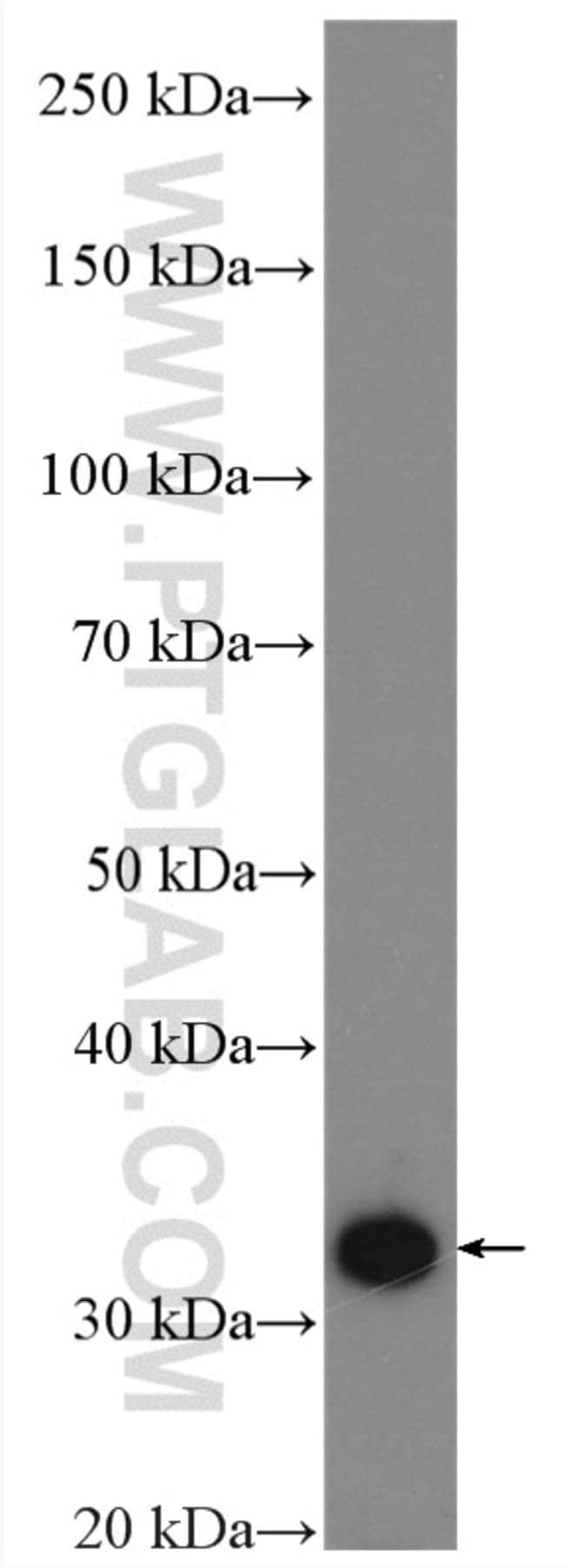 ATP6V1E1 Rabbit anti-Human, Mouse, Rat, Polyclonal, Proteintech 20 μL; Unconjugated Ver productos
