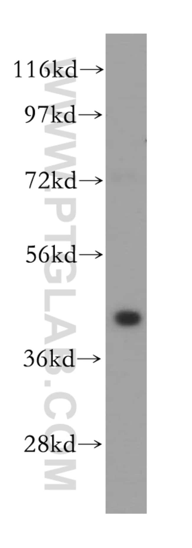 GALK1 Rabbit anti-Human, Mouse, Rat, Polyclonal, Proteintech 150 μL; Unconjugated Produkte