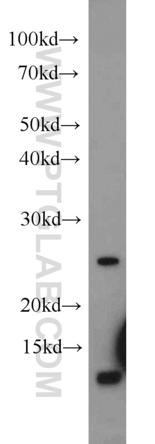 URM1 Rabbit anti-Human, Mouse, Rat, Polyclonal, Proteintech 150 μL; Unconjugated voir les résultats