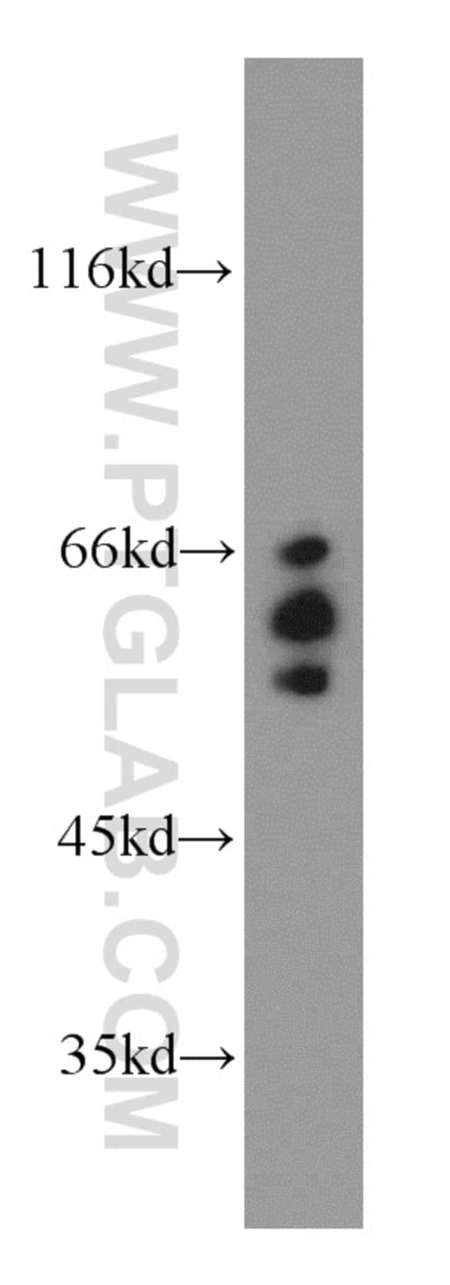 ARFGAP3 Rabbit anti-Human, Mouse, Rat, Polyclonal, Proteintech 150 μL; Unconjugated voir les résultats