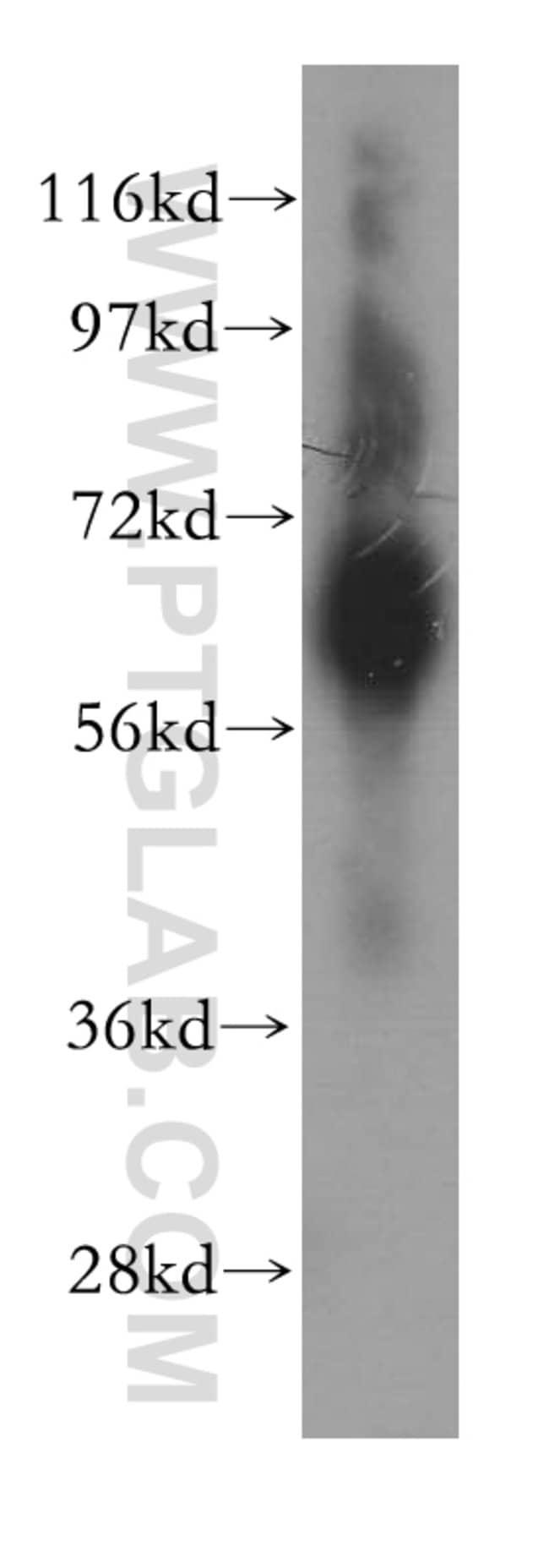GBP1 Rabbit anti-Human, Polyclonal, Proteintech 150 μL; Unconjugated voir les résultats