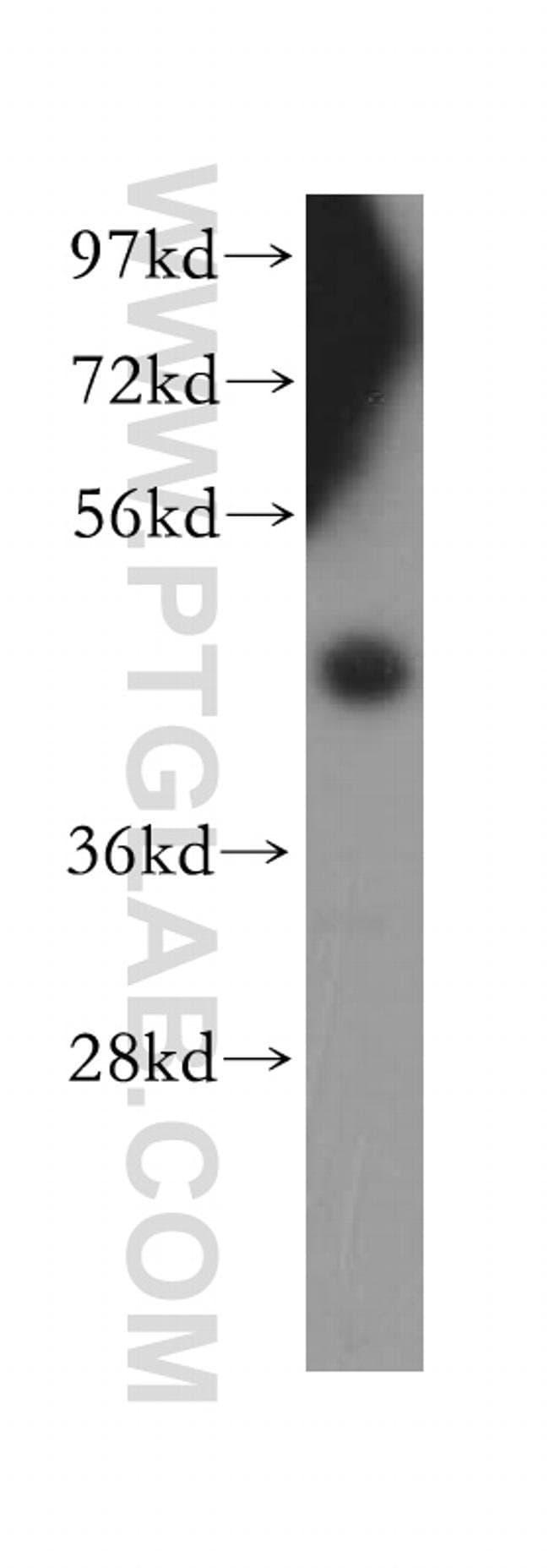 SFRP4 Rabbit anti-Human, Polyclonal, Proteintech 150 μL; Unconjugated voir les résultats