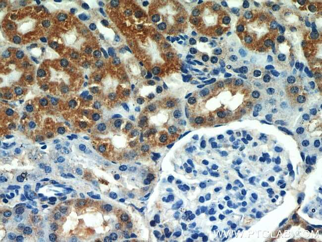 SEPX1 Rabbit anti-Human, Mouse, Rat, Polyclonal, Proteintech 150 μL; Unconjugated Produkte