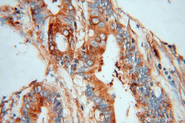 MYL9 Rabbit anti-Human, Mouse, Rat, Polyclonal, Proteintech 150 μL; Unconjugated voir les résultats