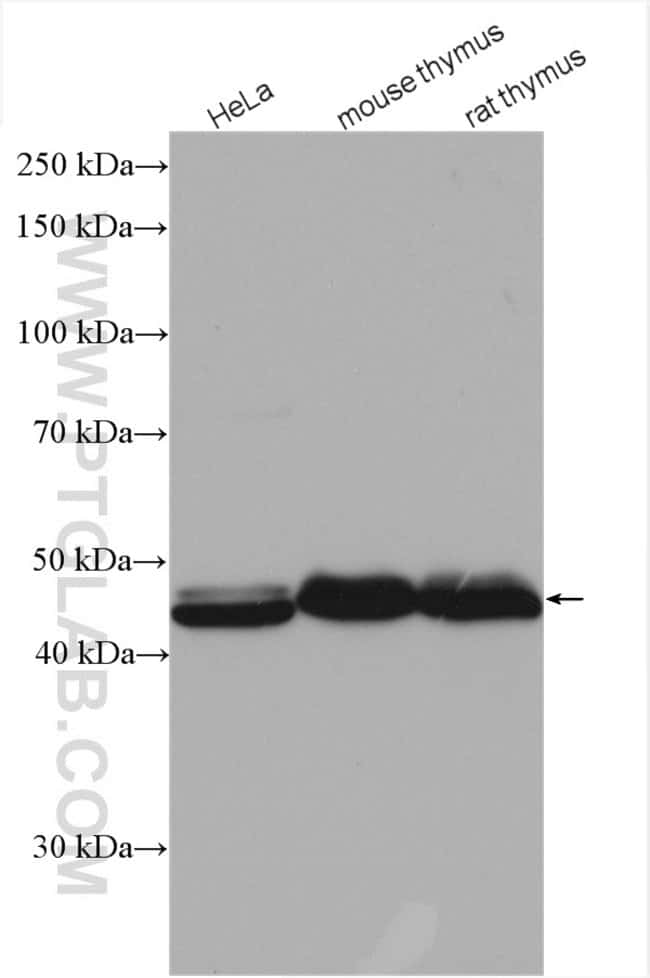 RBM17 Rabbit anti-Human, Mouse, Rat, Polyclonal, Proteintech 150 μL; Unconjugated voir les résultats