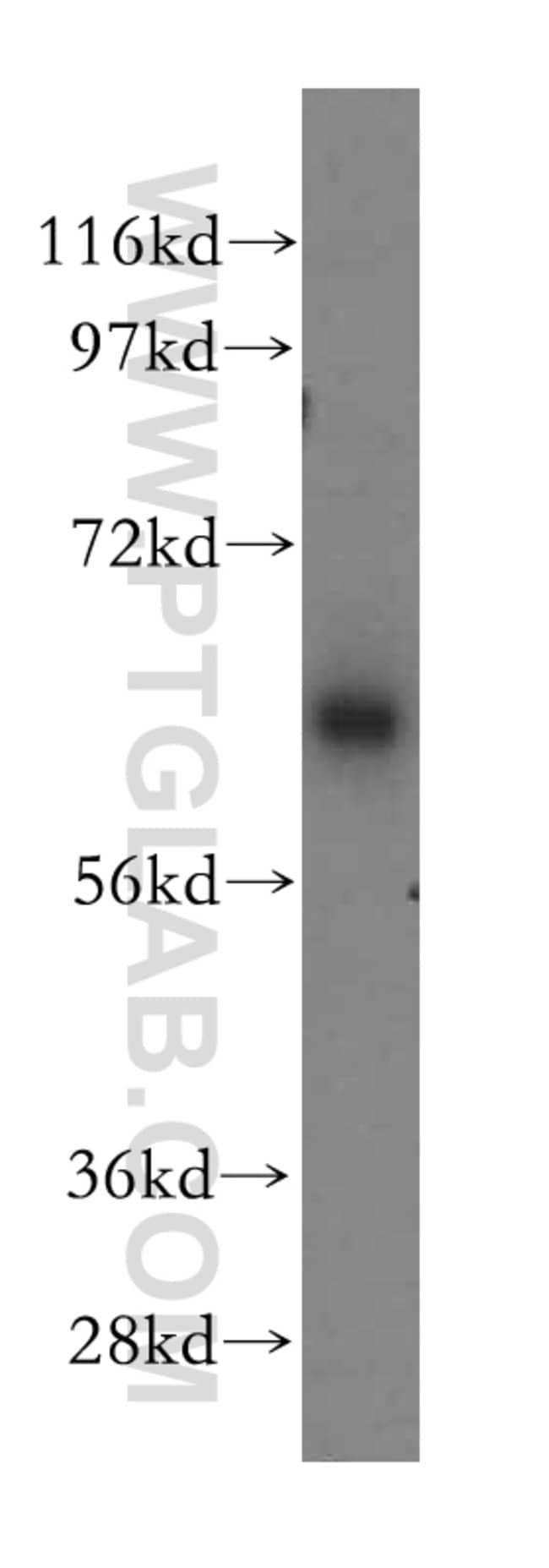 CaMKII delta Rabbit anti-Human, Mouse, Rat, Polyclonal, Proteintech 150 μL; Unconjugated voir les résultats