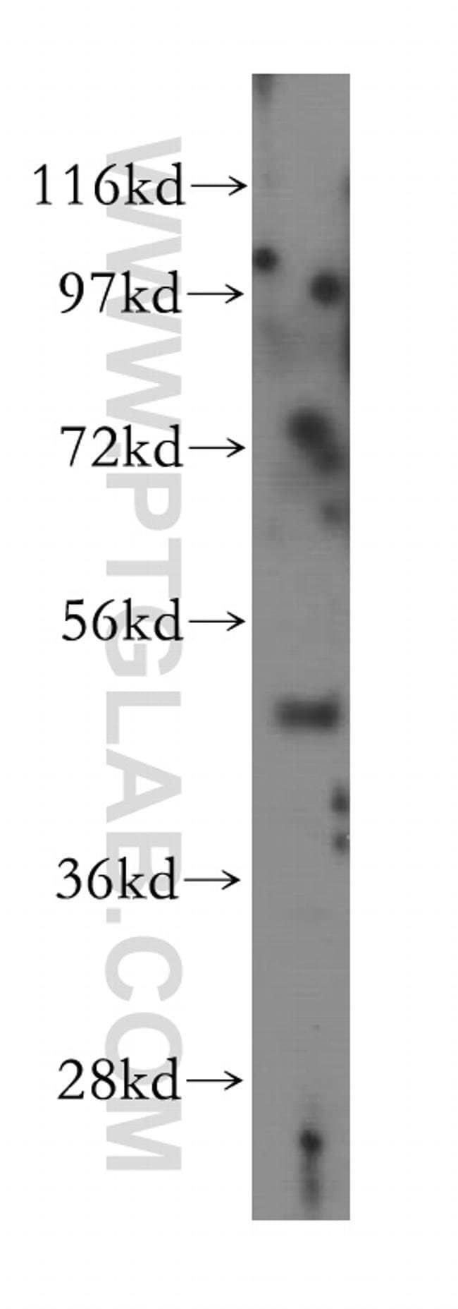 MYLIP Rabbit anti-Hamster, Human, Mouse, Rat, Polyclonal, Proteintech 150 μL; Unconjugated Produkte