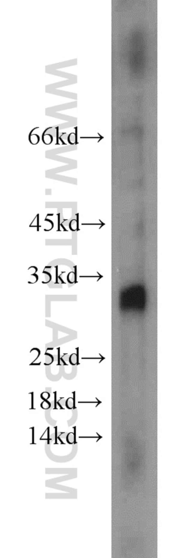 NOL12 Rabbit anti-Human, Mouse, Rat, Polyclonal, Proteintech 150 μL; Unconjugated voir les résultats