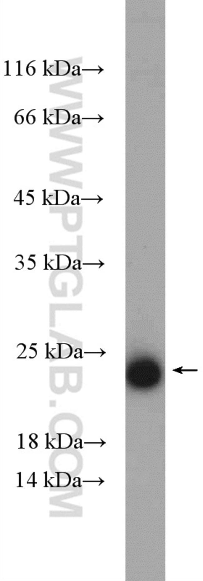 CYB5B Rabbit anti-Human, Mouse, Rat, Polyclonal, Proteintech 150 μL; Unconjugated voir les résultats