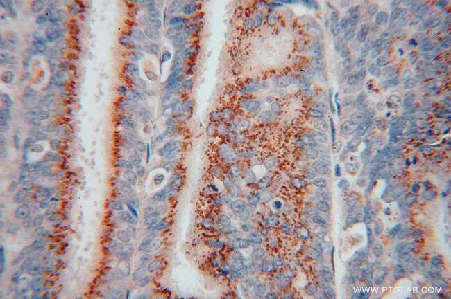 YIPF4 Rabbit anti-Human, Mouse, Rat, Polyclonal, Proteintech 150 μL; Unconjugated Produkte