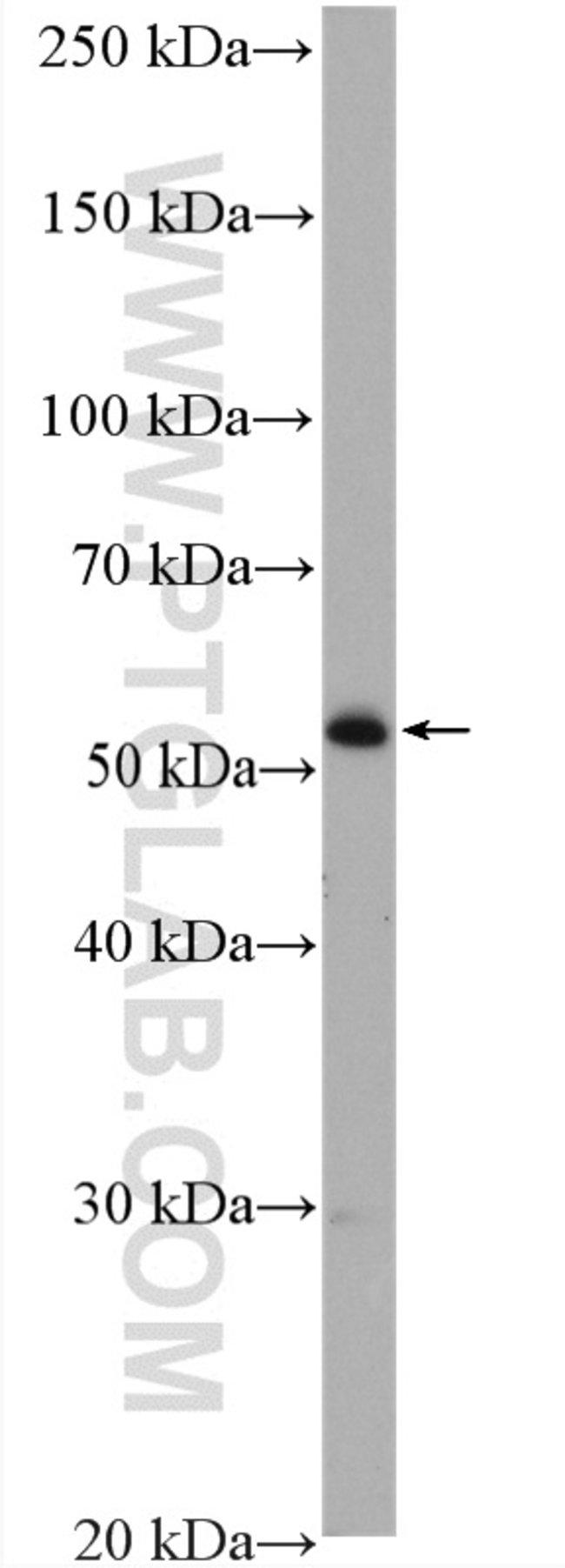 ADAT1 Rabbit anti-Human, Mouse, Rat, Polyclonal, Proteintech 20 μL; Unconjugated Ver productos