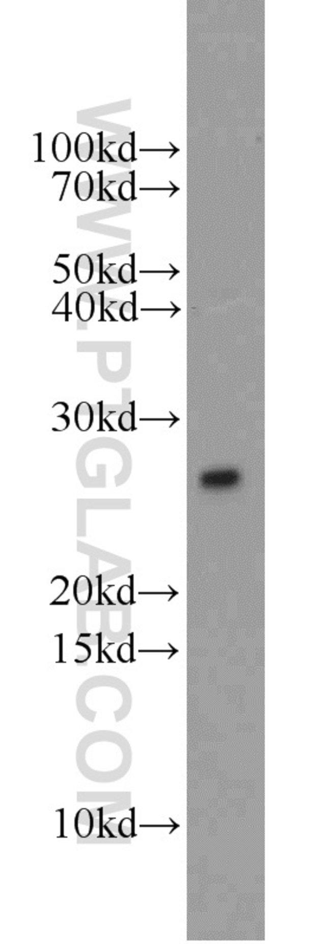 UBE2E3 Rabbit anti-Human, Mouse, Rat, Polyclonal, Proteintech 150 μL; Unconjugated Produkte
