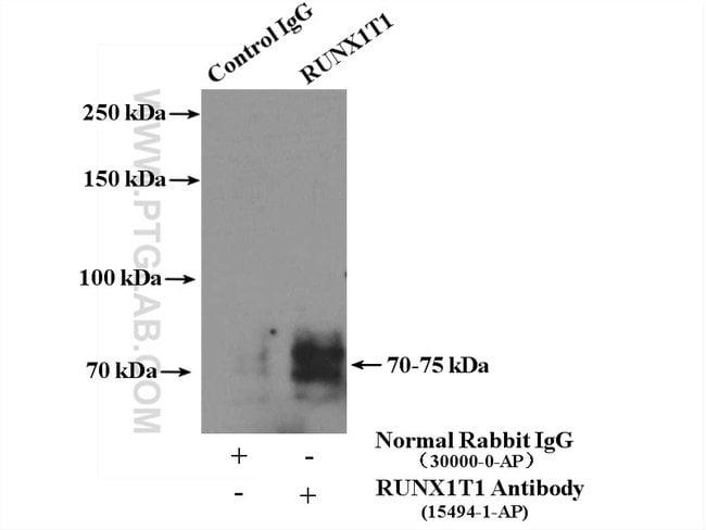 RUNX1T1 Rabbit anti-Human, Mouse, Polyclonal, Proteintech 150 μL; Unconjugated voir les résultats