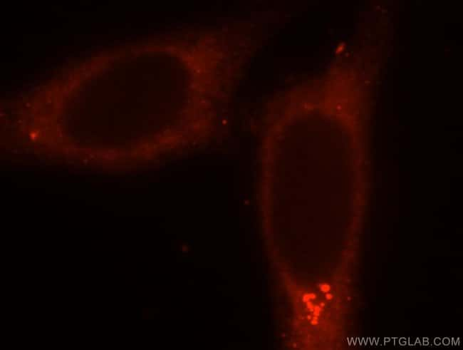 SMU1 Rabbit anti-Human, Mouse, Rat, Polyclonal, Proteintech 150 μL; Unconjugated Produkte