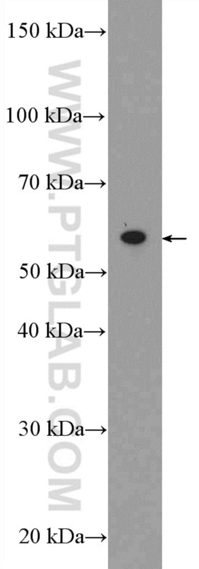 CABC1 Rabbit anti-Human, Mouse, Rat, Polyclonal, Proteintech 150 μL; Unconjugated voir les résultats