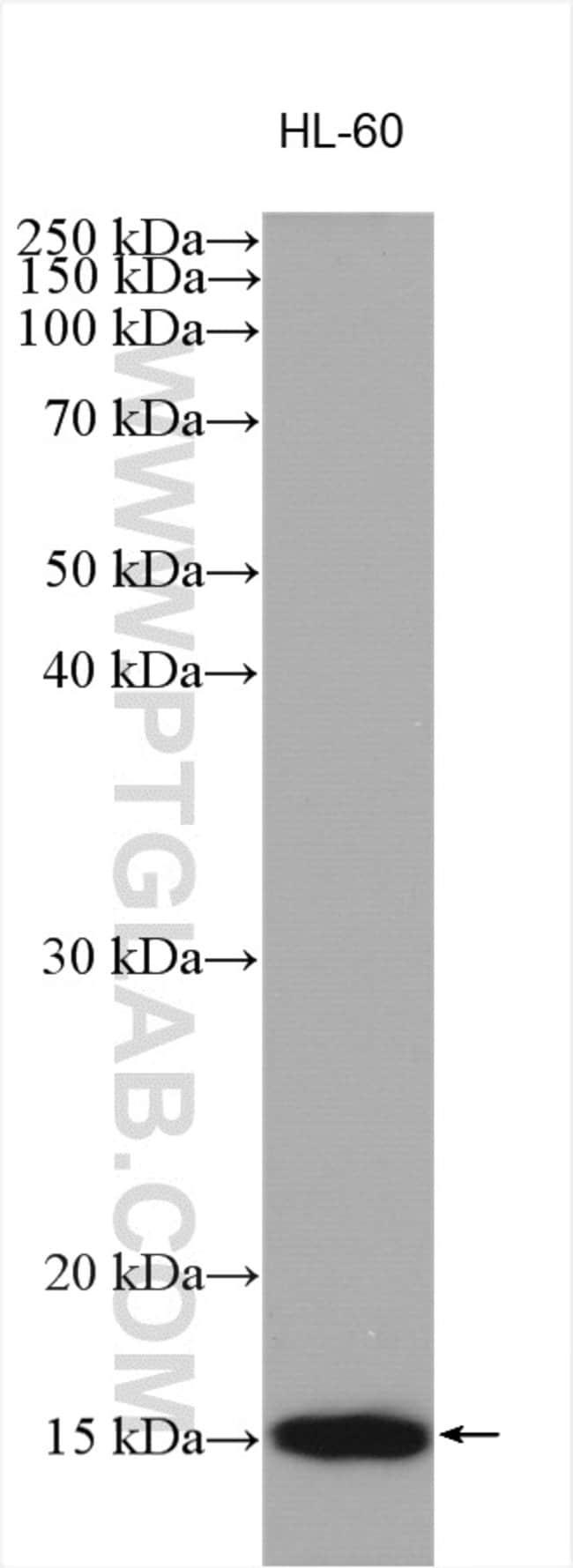 VAMP8 Rabbit anti-Human, Mouse, Rat, Polyclonal, Proteintech 150 μL; Unconjugated Produkte