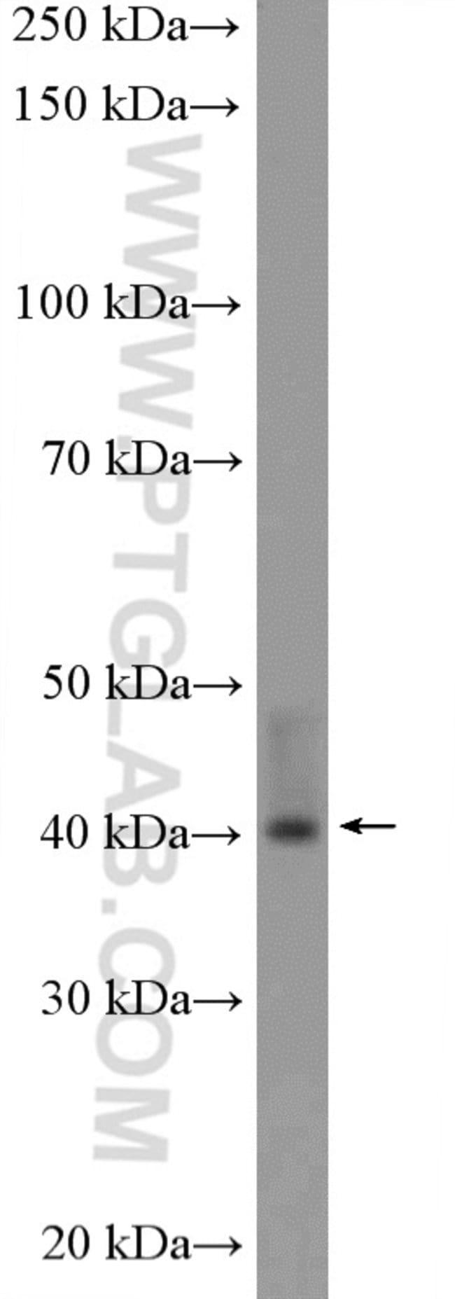 UROD Rabbit anti-Human, Mouse, Rat, Polyclonal, Proteintech 150 μL; Unconjugated voir les résultats
