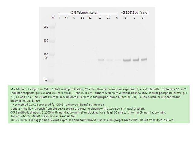 AGBL5/CCP5 Rabbit anti-Human, Polyclonal, Proteintech 20 μL; Unconjugated Ver productos