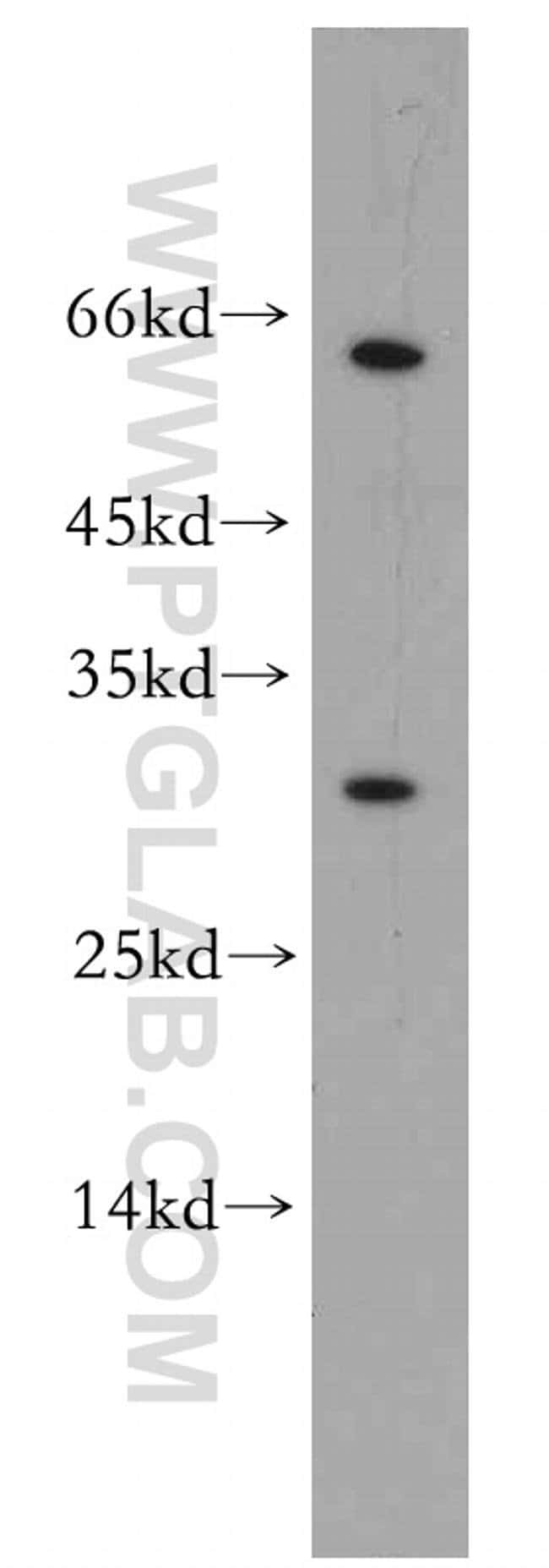 REXO2 Rabbit anti-Human, Mouse, Rat, Polyclonal, Proteintech 20 μL; Unconjugated Ver productos