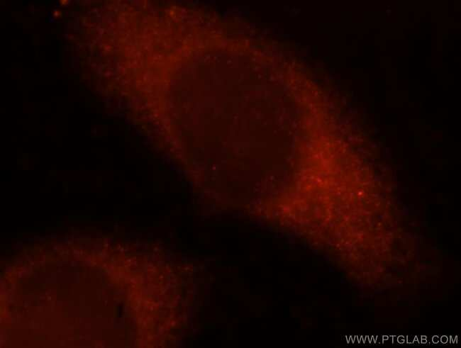 OXSR1 Rabbit anti-Human, Mouse, Rat, Polyclonal, Proteintech 150 μL; Unconjugated Produkte