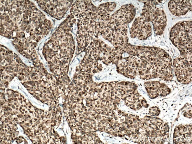 AKAP1 Rabbit anti-Human, Polyclonal, Proteintech 150 μL; Unconjugated Produkte