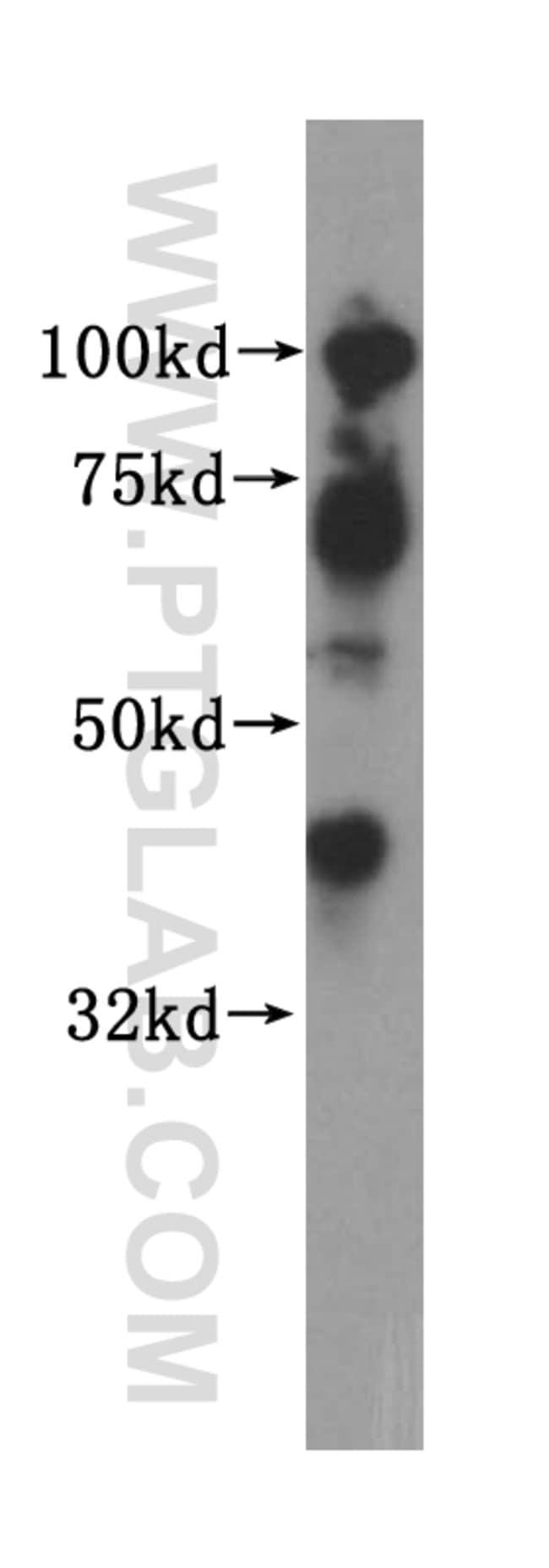 Islet 1 Rabbit anti-Human, Mouse, Rat, Polyclonal, Proteintech 150 μL; Unconjugated Produkte