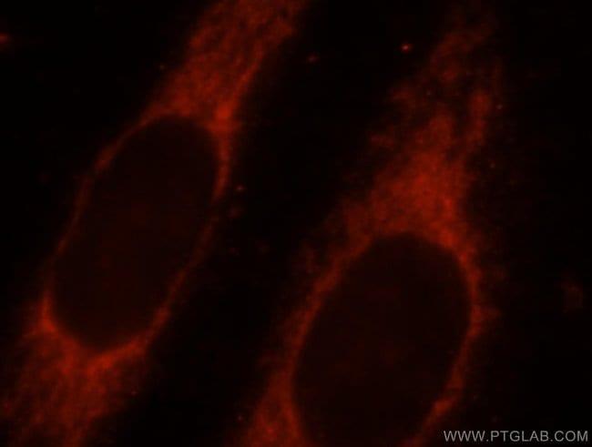 SYNJ2BP Rabbit anti-Human, Mouse, Polyclonal, Proteintech 150 μL; Unconjugated Produkte