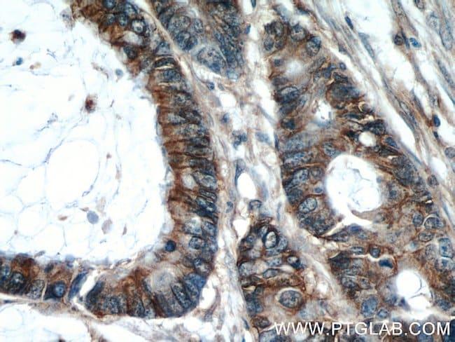 CD44 Rabbit anti-Human, Mouse, Rat, Polyclonal, Proteintech 150 μL; Unconjugated Produkte