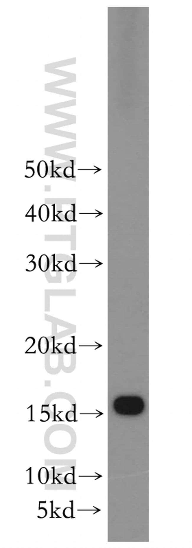RPS20 Rabbit anti-Human, Mouse, Rat, Polyclonal, Proteintech 20 μL; Unconjugated Ver productos