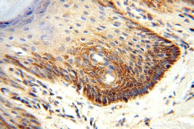 CLPP Rabbit anti-Human, Mouse, Rat, Polyclonal, Proteintech 150 μL; Unconjugated voir les résultats