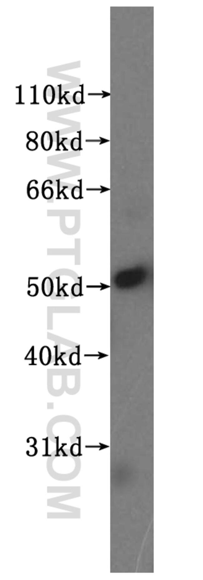 NUF2 Rabbit anti-Human, Mouse, Rat, Polyclonal, Proteintech 150 μL; Unconjugated voir les résultats
