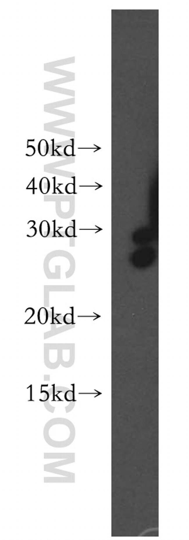 DHRS2 Rabbit anti-Human, Polyclonal, Proteintech 150 μL; Unconjugated Produkte
