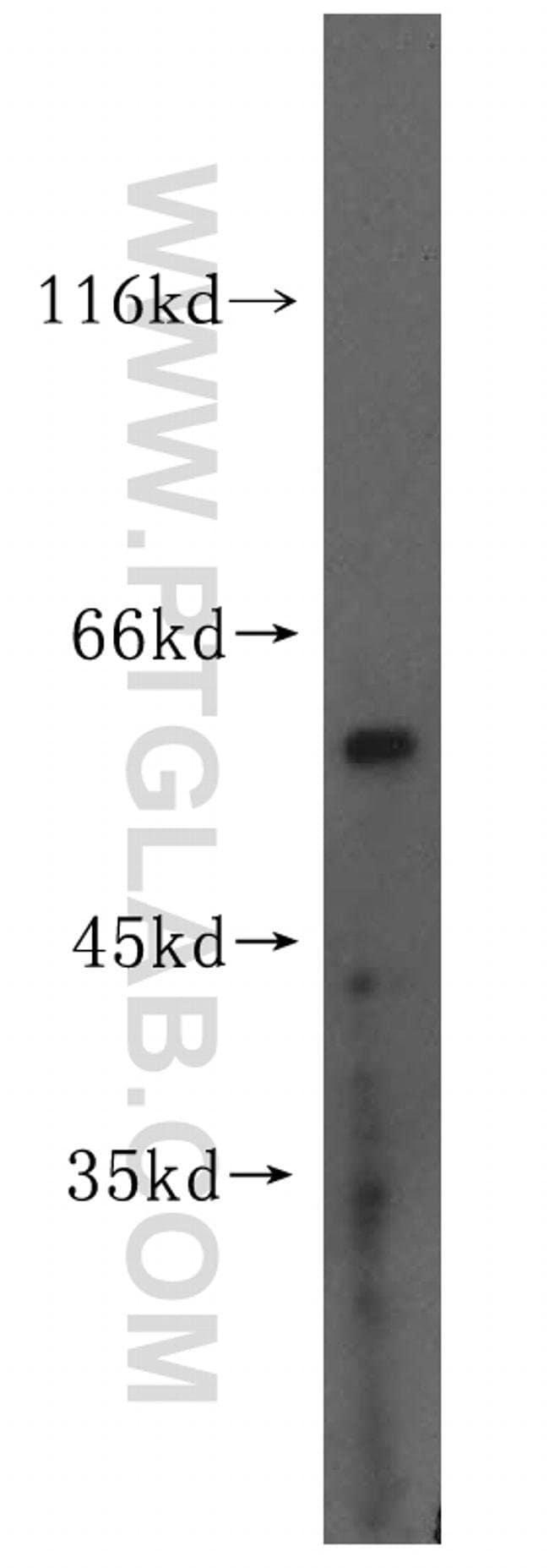 MEK5 Rabbit anti-Human, Mouse, Rat, Polyclonal, Proteintech 150 μL; Unconjugated Produkte