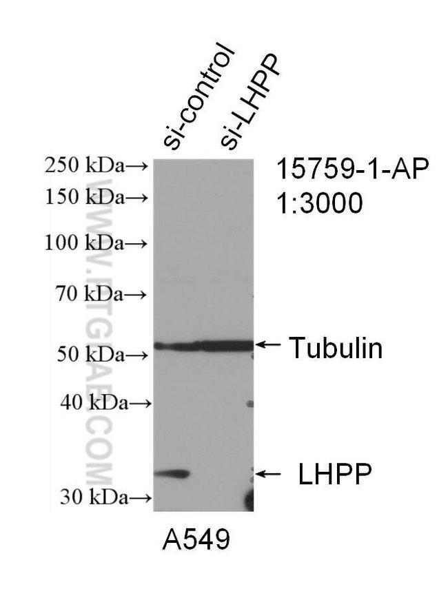LHPP Rabbit anti-Human, Mouse, Rat, Polyclonal, Proteintech 20 μL; Unconjugated Ver productos