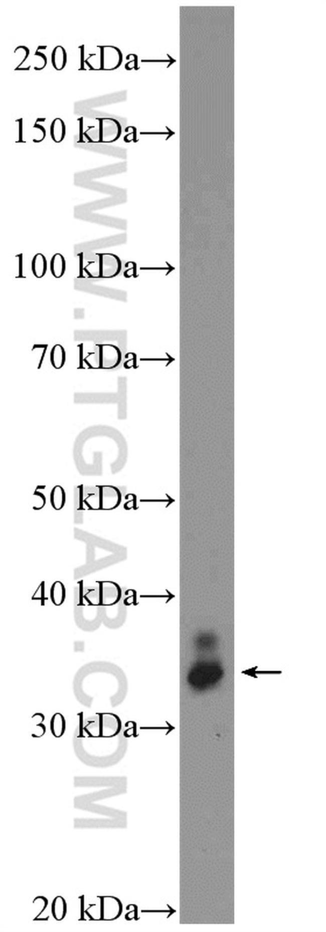 VAX2 Rabbit anti-Human, Mouse, Rat, Polyclonal, Proteintech 20 μL; Unconjugated Ver productos