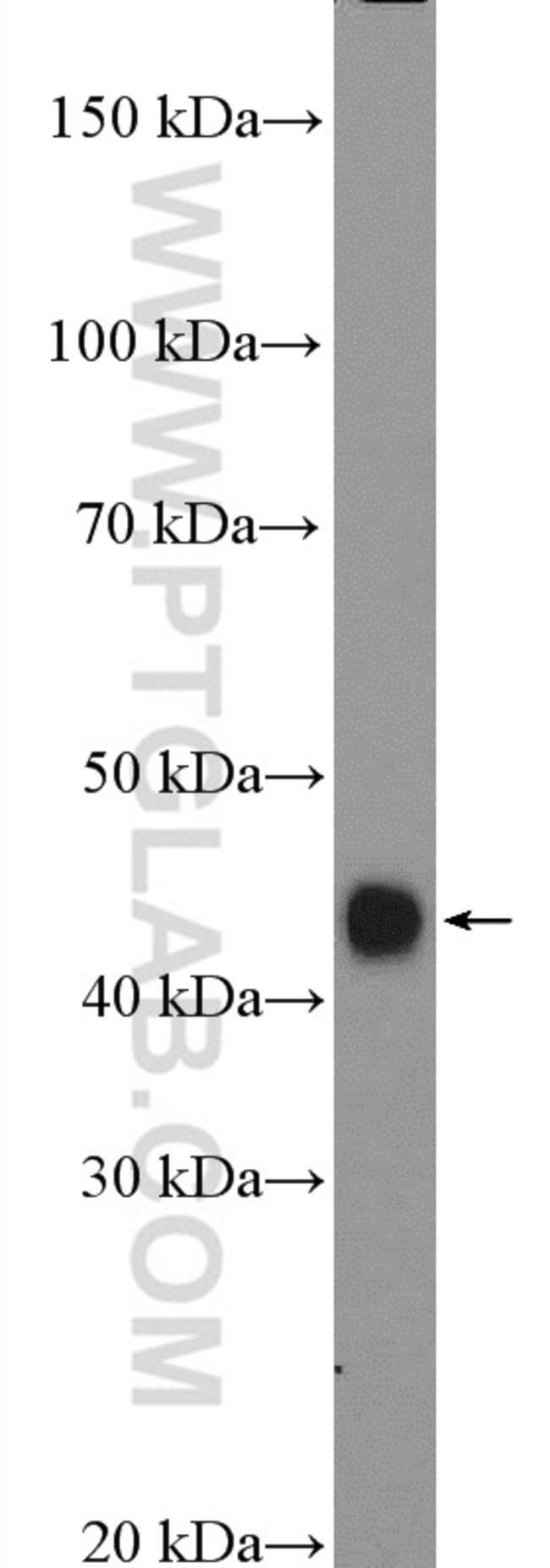 HLA class I (HLA-C) Rabbit anti-Human, Polyclonal, Proteintech 150 μL; Unconjugated Produkte