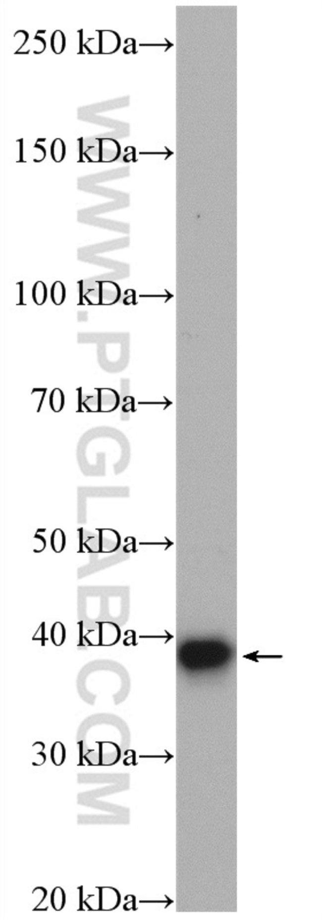 VTA1 Rabbit anti-Human, Polyclonal, Proteintech 150 μL; Unconjugated voir les résultats