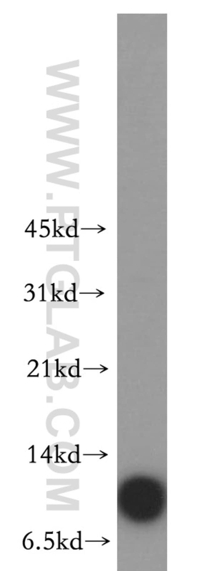 SMPX Rabbit anti-Human, Mouse, Rat, Polyclonal, Proteintech 150 μL; Unconjugated Produkte