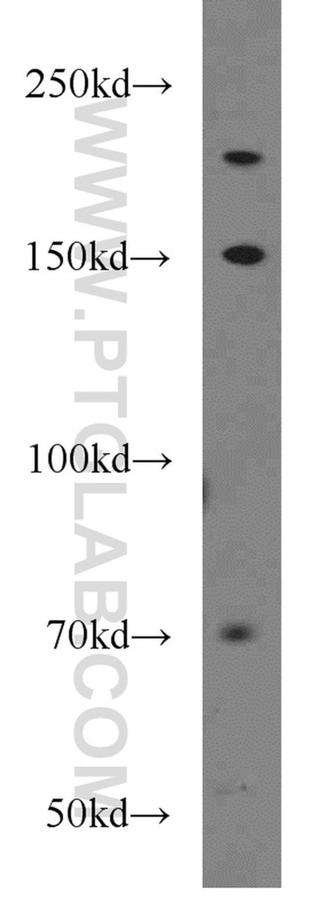 UBE2O Rabbit anti-Human, Mouse, Polyclonal, Proteintech 150 μL; Unconjugated Produkte