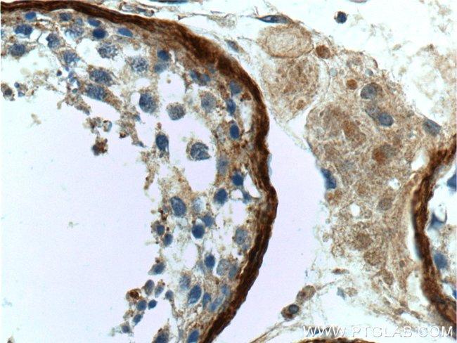 Vitronectin Rabbit anti-Human, Mouse, Rat, Polyclonal, Proteintech 150 μL; Unconjugated Produkte