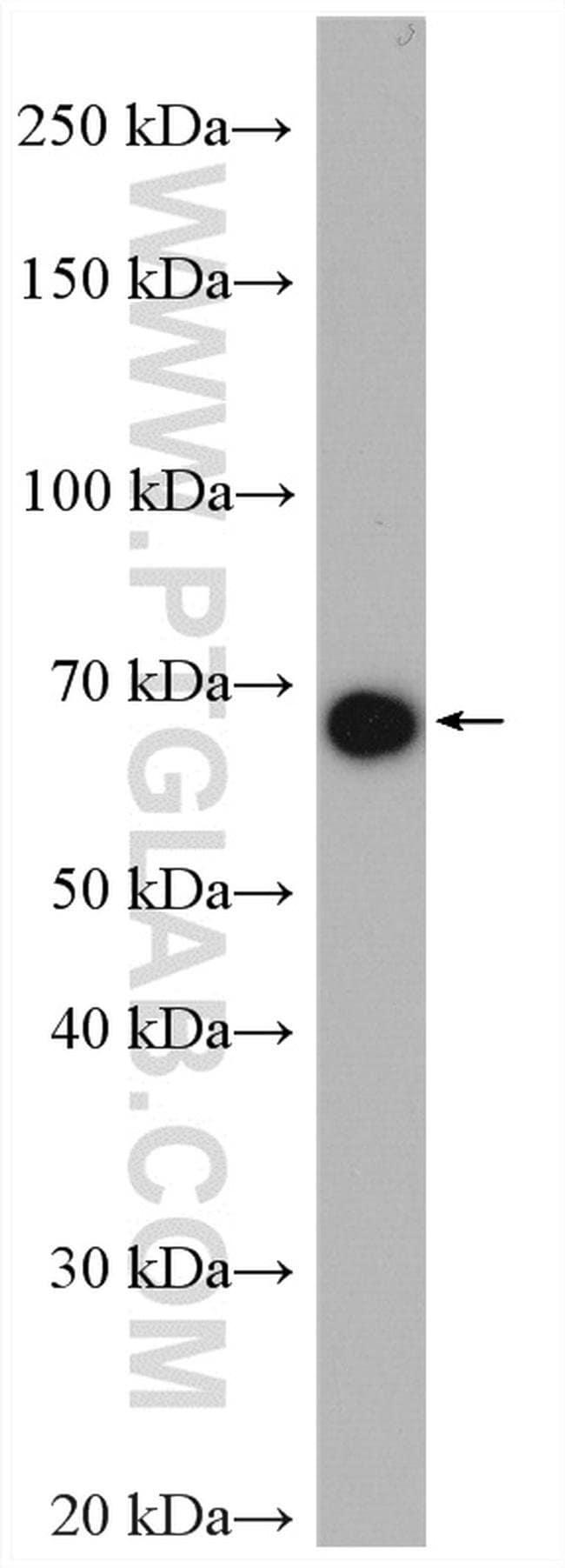 TGM4 Rabbit anti-Human, Mouse, Polyclonal, Proteintech 150 μL; Unconjugated Produkte