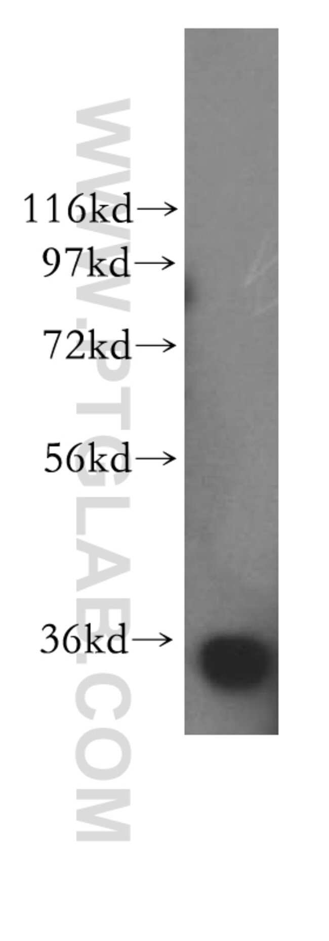 PPP6C Rabbit anti-Human, Mouse, Rat, Polyclonal, Proteintech 150 μL; Unconjugated Produkte