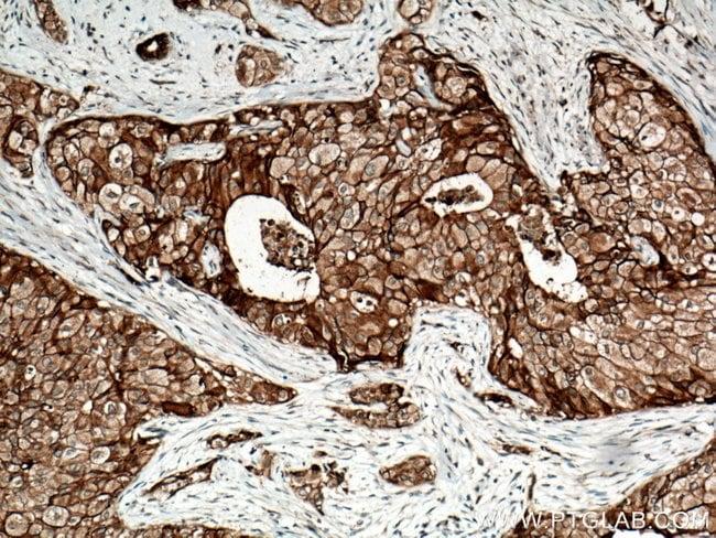 FXYD3 Rabbit anti-Human, Mouse, Rat, Polyclonal, Proteintech 150 μL; Unconjugated voir les résultats