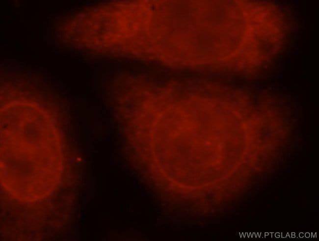 THYN1 Rabbit anti-Human, Mouse, Rat, Polyclonal, Proteintech 150 μL; Unconjugated voir les résultats