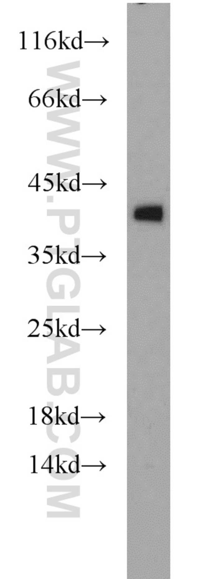 Glycophorin A Rabbit anti-Human, Polyclonal, Proteintech 150 μL; Unconjugated Produkte