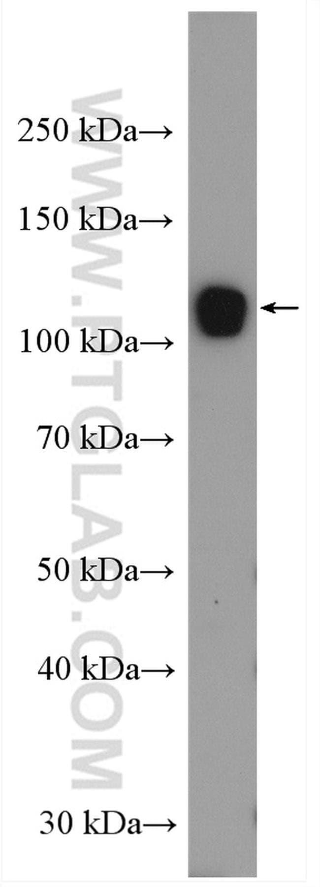 UBE1 Rabbit anti-Human, Mouse, Rat, Polyclonal, Proteintech 150 μL; Unconjugated voir les résultats