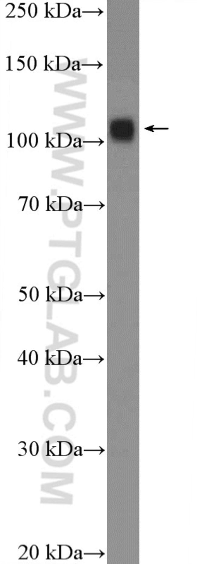 UBE1 Rabbit anti-Human, Mouse, Rat, Polyclonal, Proteintech 20 μL; Unconjugated Ver productos