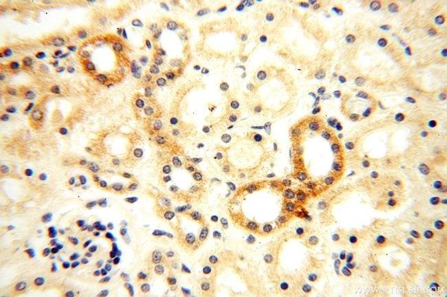 Semenogelin-1 Rabbit anti-Human, Polyclonal, Proteintech 150 μL; Unconjugated Produkte