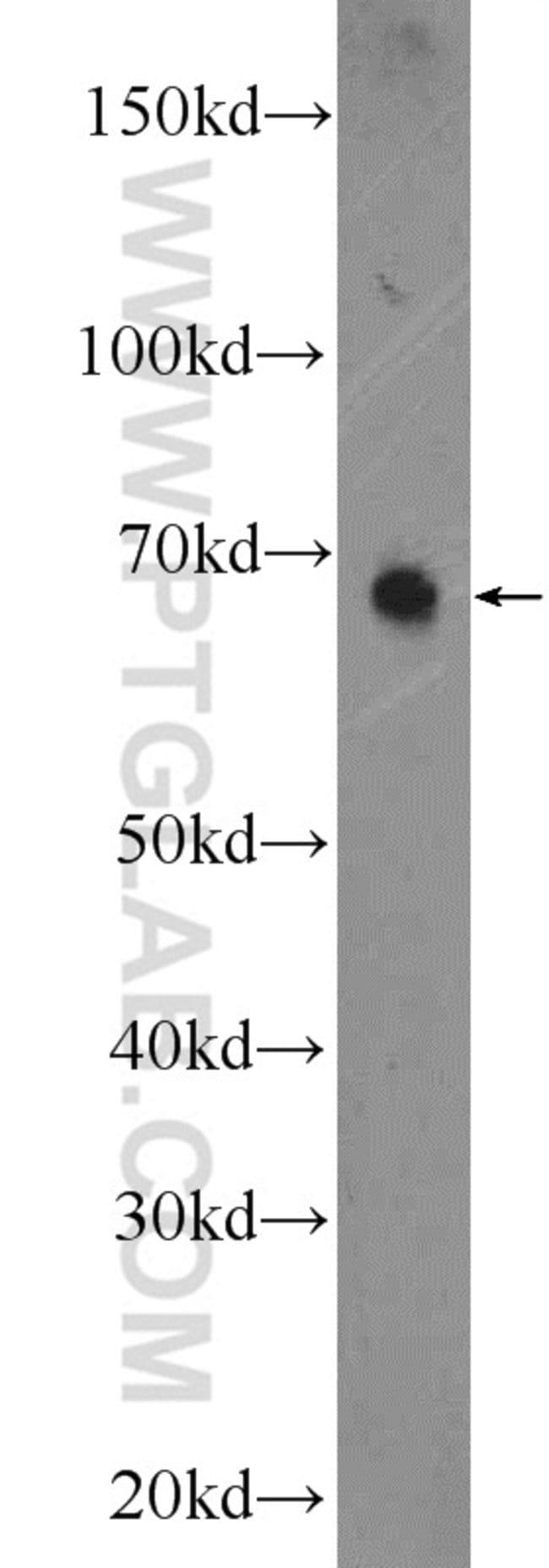 SEC24A Rabbit anti-Human, Mouse, Rat, Polyclonal, Proteintech 20 μL; Unconjugated Ver productos